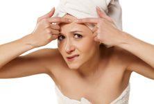 Akné vulgaris - nejběžnější onemocnění kůže